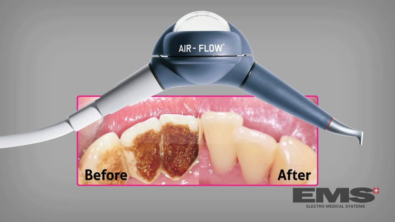 Before and After Photo of Air-Flow Treatment