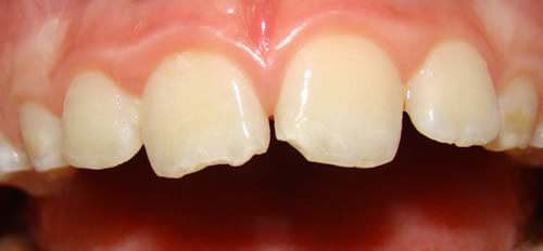 Before Composite Fillings