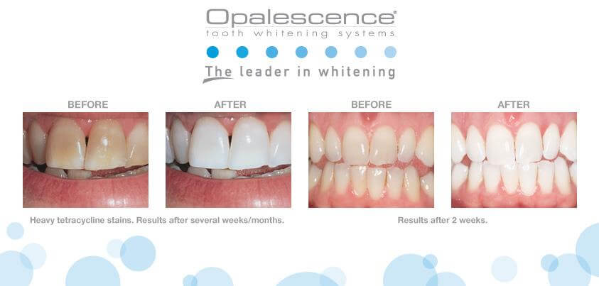 Before and After Pictures of Whitening Treatment